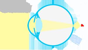 esquema-ojo-hipermetrope-sm