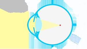 esquema-ojo-miope-sm