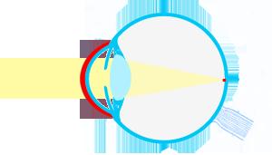 esquema-ojocon-LCnegativa