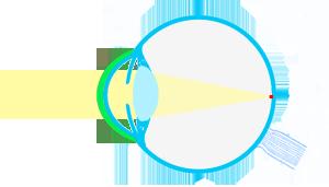 esquema-ojocon-LCpositiva