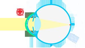 esquema-ojocon-terapeutica
