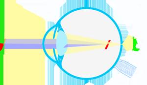 modelo-astigmatismo