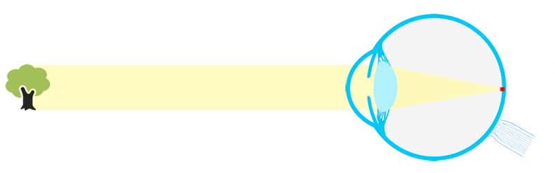 presbicia1
