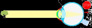 progresioin-miopia-2